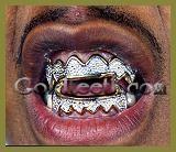 金歯ドットコム